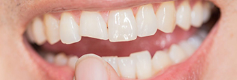 Closeup of smile with broken tooth before restorative dentistry