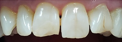 Decayed and gapped front teeth